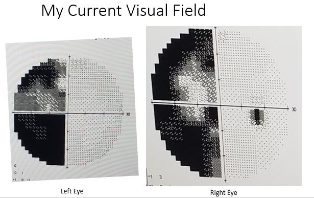The Neuro-Opthamologist Visit…Atlast